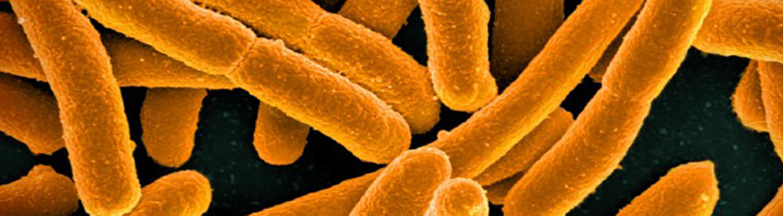 E-coli bacteria appear as wide, yellow rods against black background