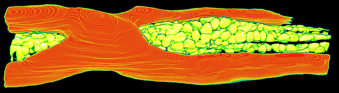 Blood vessel and mitochondria in a mouse heart viewed under microscope