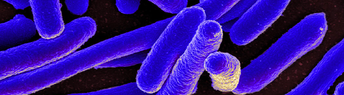 Several purple, cylinder-shaped  E. coli bacteria