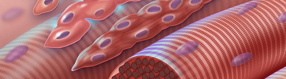 This graphic depicts normal myoblast (early muscle cells with a single nucleus) fusing together to form myocytes (multinucleated muscle cells) during myogenesis.