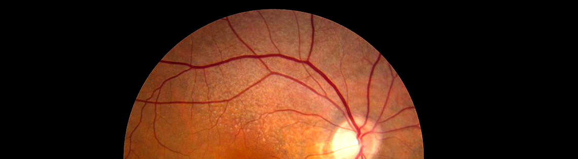 The retina looks like a orange circle with a tiny bright dot in the upper right hand corner. Veins are visible in the photo.