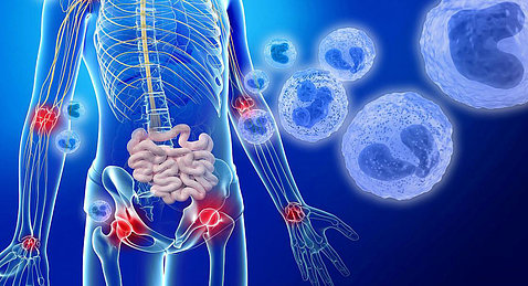 Against a blue background, a diagram of a skeleton shows areas of red inflammation.