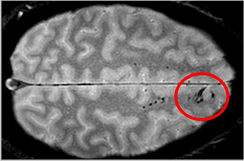 An MRI scan shows black spots on a section of the brain, circled in red.