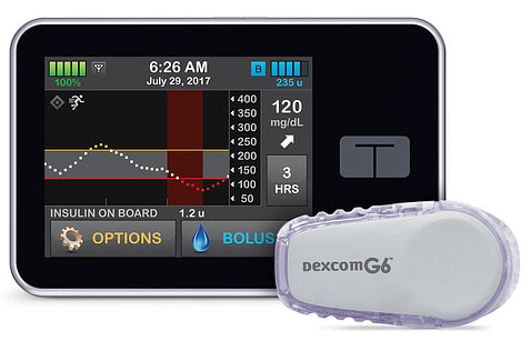 A small electronic screen shows a white wave and green bars tracking a patient's glucose level.