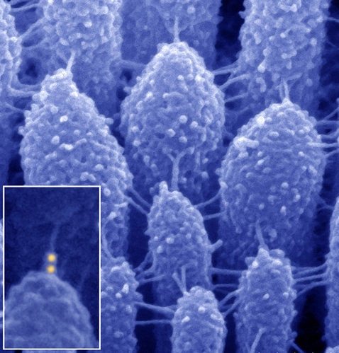 Scanning electron microscopy image illustrates tiny extracellular links between stereocilia of an inner ear hair cell