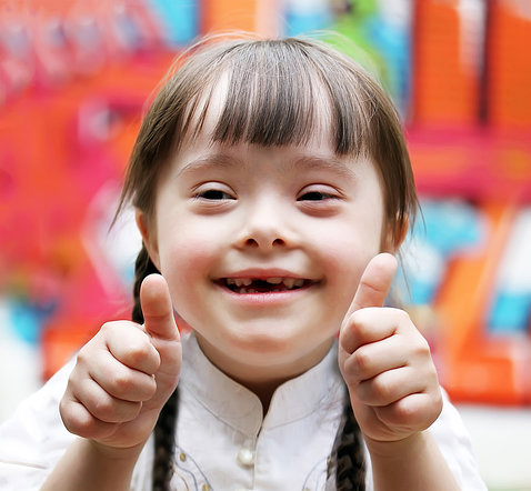 Little girl with Down syndrome smiles and gestures thumbs up