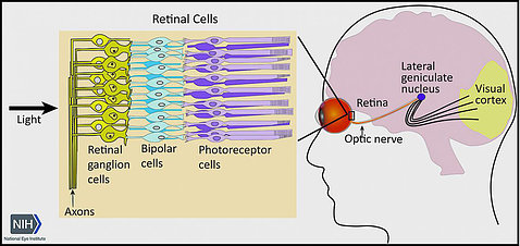 Diagram of the optic nerve shows light entering groups of retinal cells. An eye drawing shows location in head of retina, optic nerve and visual cortex.