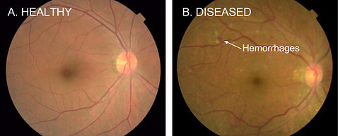 A translucent eyeball that's healthy next to a diseases eyeball with red spots representing hemorrhages, a sign of diabetic retinopahty
