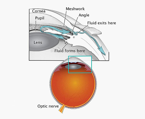 An orange eyeball points to the optic nerve and meshwork that affects the eye's drainage.
