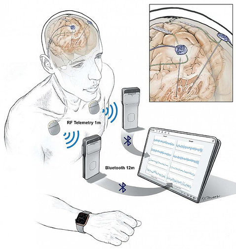 Illustration of brain inside a human head. Devices in foreground are shown to be receiving data from electrodes communicating with the brain's activity.