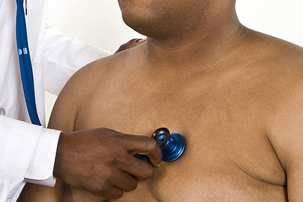 A doctor holds a stethoscope over the bare chest of an obese man.