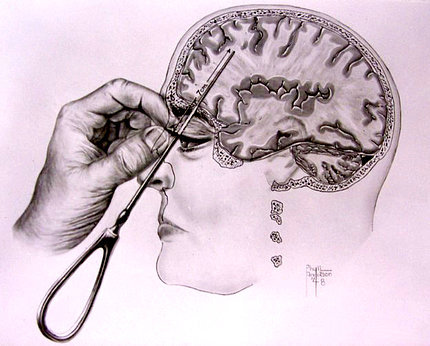 A drawing of hand using Freeman's icepick-inspired transorbital lobotomy instrument on patient