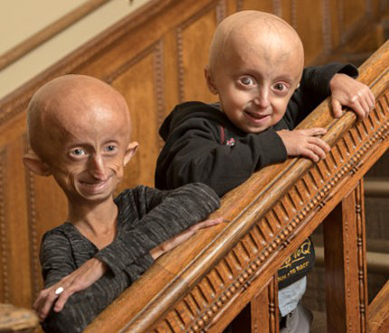 On a staircase, two youngsters who have progeria smile into camera.