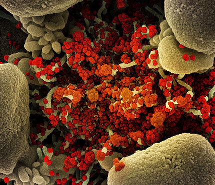 Micrograph of an apoptotic cell (tan) heavily infected with SARS-CoV-2 virus particles (orange),