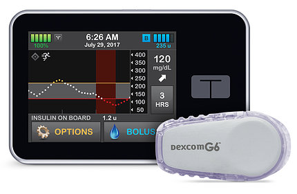 The Control-IQ artificial pancreas system device