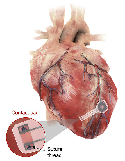 An image of the human heart with a patch, the transient pacemaker, attached to the bottom