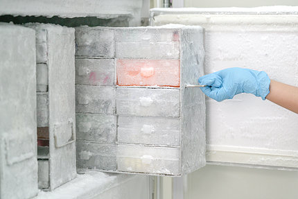 Laboratory freezer kept at an ultra low temperature