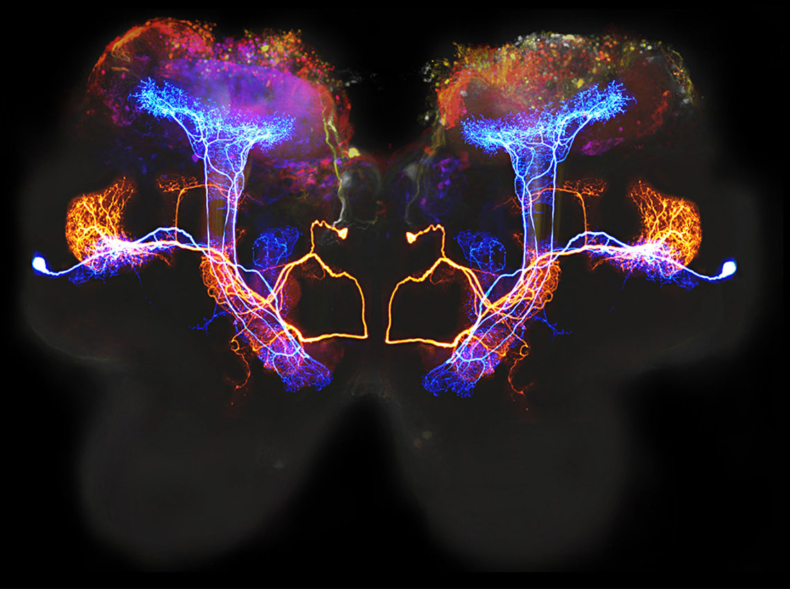 Image of two neurons