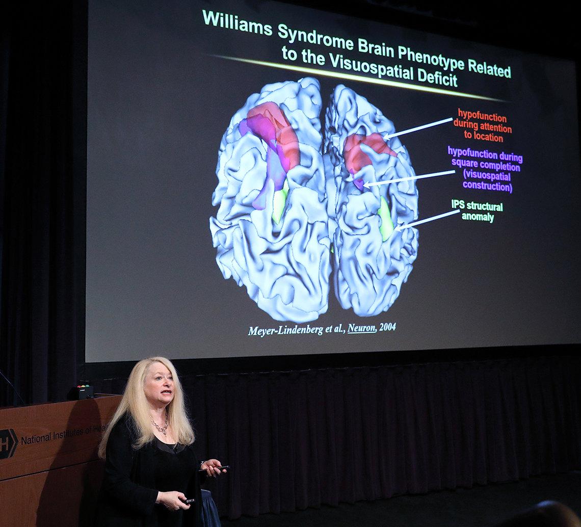 Berman speaks in front of slide featuring a brain scan