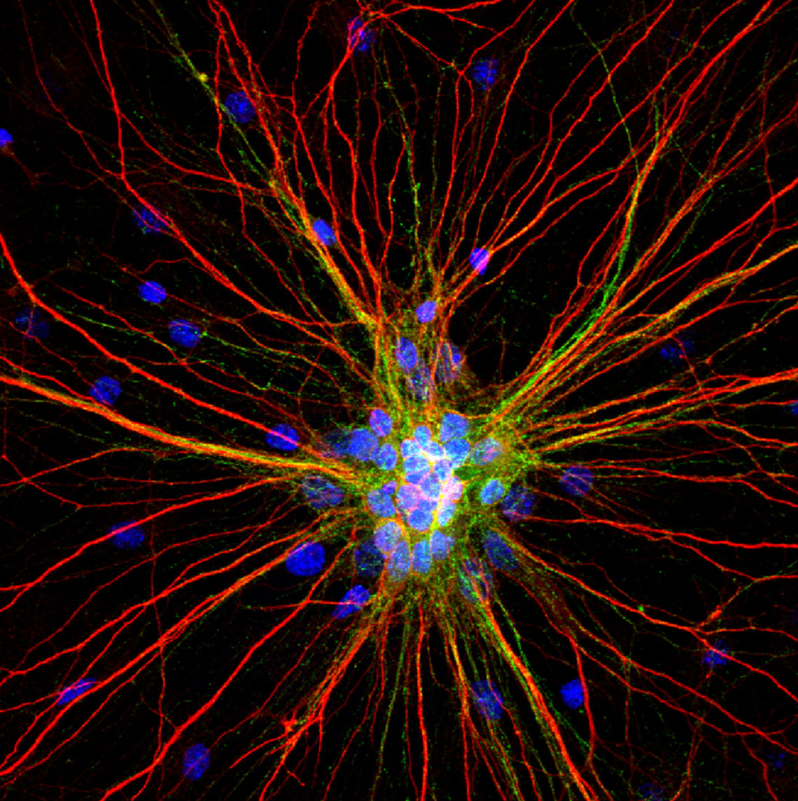 Rat cortical neurons labeled for dendrites (red), axons (green) and nuclei (blue).