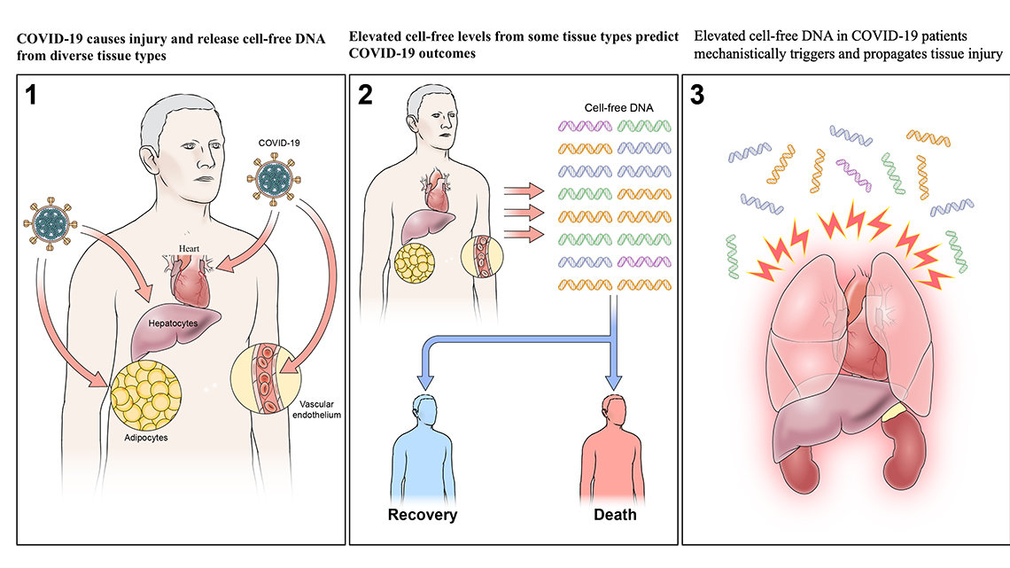 A graphic with 3 panels showing Covid viral particles entering and causing injury to the body; elevated cell-free DNA levels predicts Covid-19 outcomes.