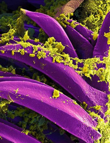 scientific image vibrant purple petal-shaped rods coated with yellow-green flaky strands