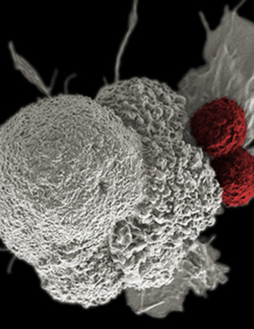 Large, white spongy masses in white of a cancer cell being attacked by 2 red balls representing cytotoxic T cells