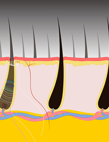 Neuron responds to pulling of single hair.