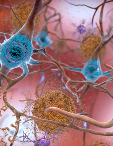 In the Alzheimer's-affected brain, abnormal levels of the beta-amyloid protein and tau protein accumulate.
