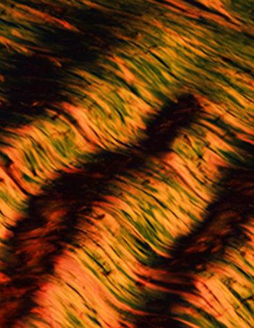 Brown and beige wavy lines of collagen fibers in the knee