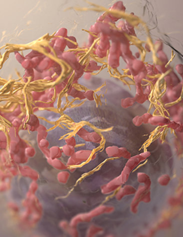 Large pink dots with yellow strands make up the 3-D structure of a melanoma cell