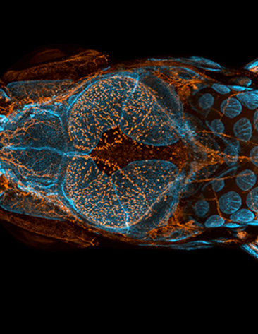 Dorsal view of bones, scales and lymphatic vessels in a juvenile zebrafish
