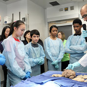 Participants look on as NCI's Dr. Christopher Trindade points to a human brain. PHOTO: CHIA-CHI CHARLIE CHANG